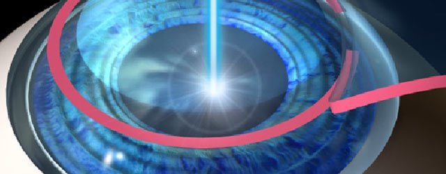 Choosing Laser Eye Surgery : Should I Stay Or Should I Go?